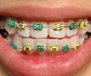 Orthodontic Dentistry