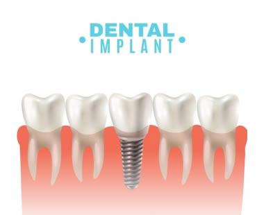How Dental Implants Can Preserve Bone