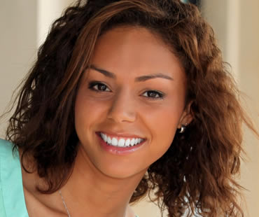 Transforming your Smile with Veneers