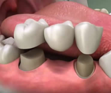 Understanding the Basics About Dental Crowns and Dental Bridges