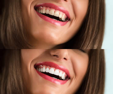 Make Your Big Day Special With Teeth Whitening