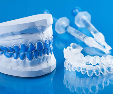 After Teeth Whitening: Do's and Don'ts