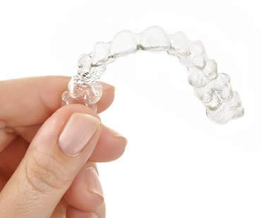 Invisalign: A Modern Way to Improve your Smile