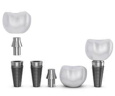 Dental Implant FAQ