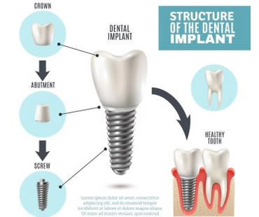 How Dental Implants Changed Dentures Forever